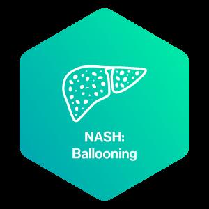 NASH: Ballooning
